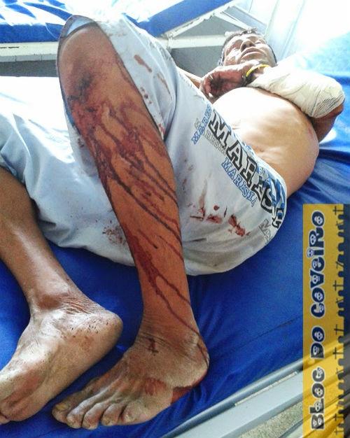 Homem é agredido a pauladas e sofre fraturas no braço