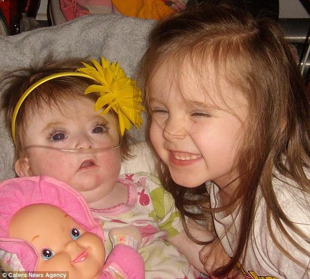 Bebê de 19 meses enviado para casa para morrer sobrevive depois de mãe lhe dar óleo de maconha