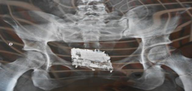 Mulher é flagrada com celular no intestino grosso em penitenciária
