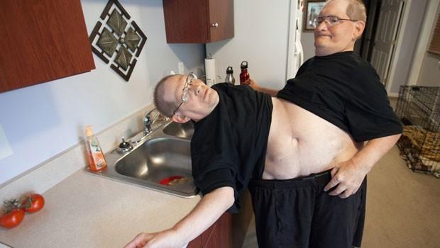 Gêmeos siameses devem bater recorde de longevidade nos EUA