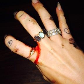 Miley Cyrus conta em rede social que cortou a mão