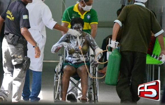 Detenta ateia fogo em cela e cinco sofrem queimaduras em Parnaíba