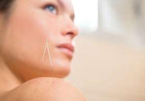 Técnicas de acupuntura tratam celulite, acne e também a flacidez