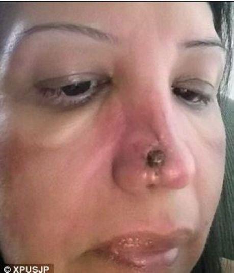 Médico erra na plástica e deixa buraco no nariz de mulher