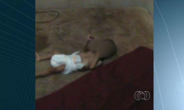 A bebê está internada em estado grave com sinais de desnutrição (Crédito: Reprodução)