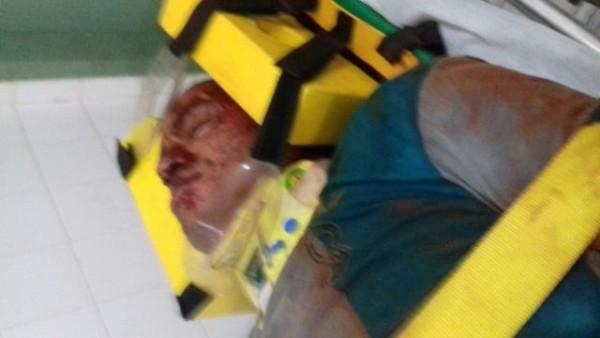 Lavrador ficou gravemente ferido (Crédito: Reprodução)