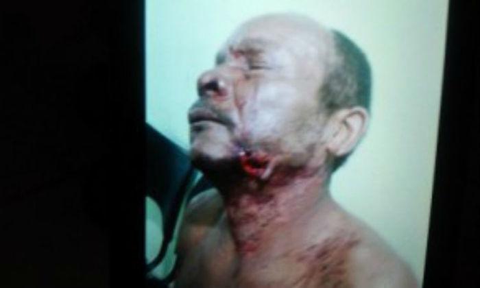 Homem foi mordido no rosto (Crédito: Florianonews)