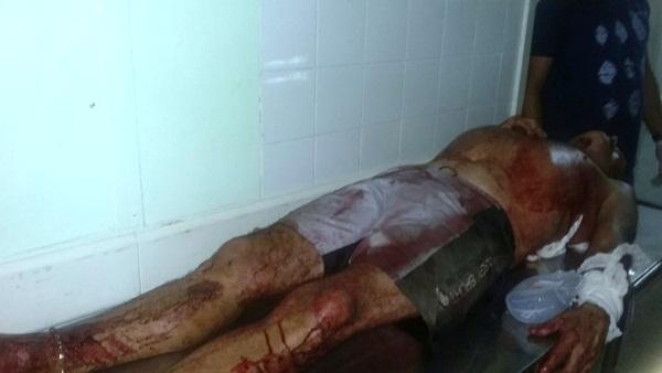 Homem ferido a golpes de faca (Crédito: Reprodução)