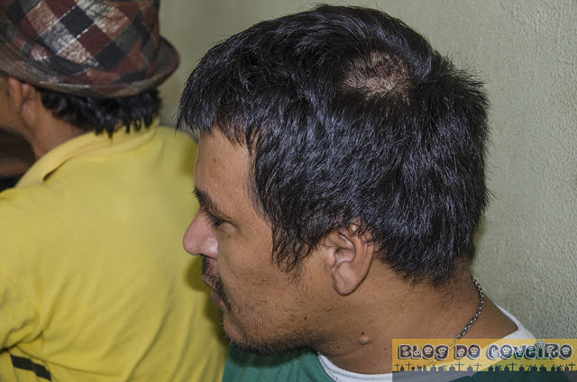 Eliomar Oliveira Moura mostrando os ferimentos (Crédito: Reprodução)