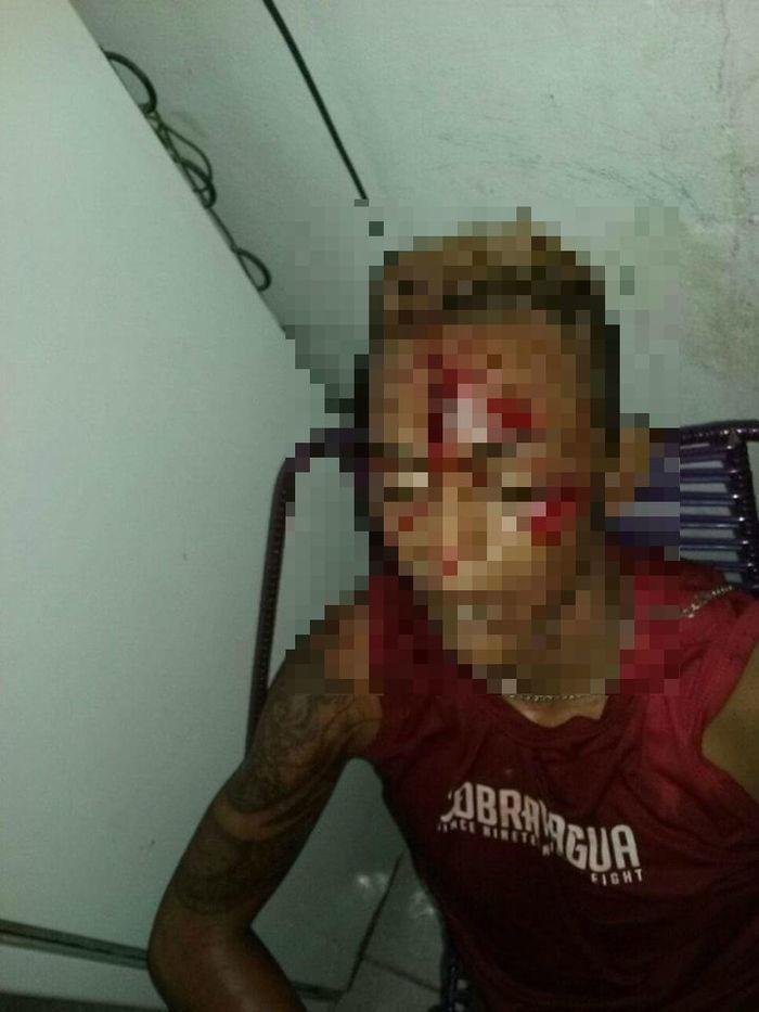 Jovem recebeu um tiro na testa (Crédito: Reprodução)