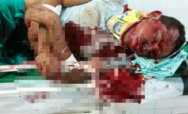 O rapaz foi encaminhado para o Hospital de Urgência de Teresina (Crédito: Reprodução)