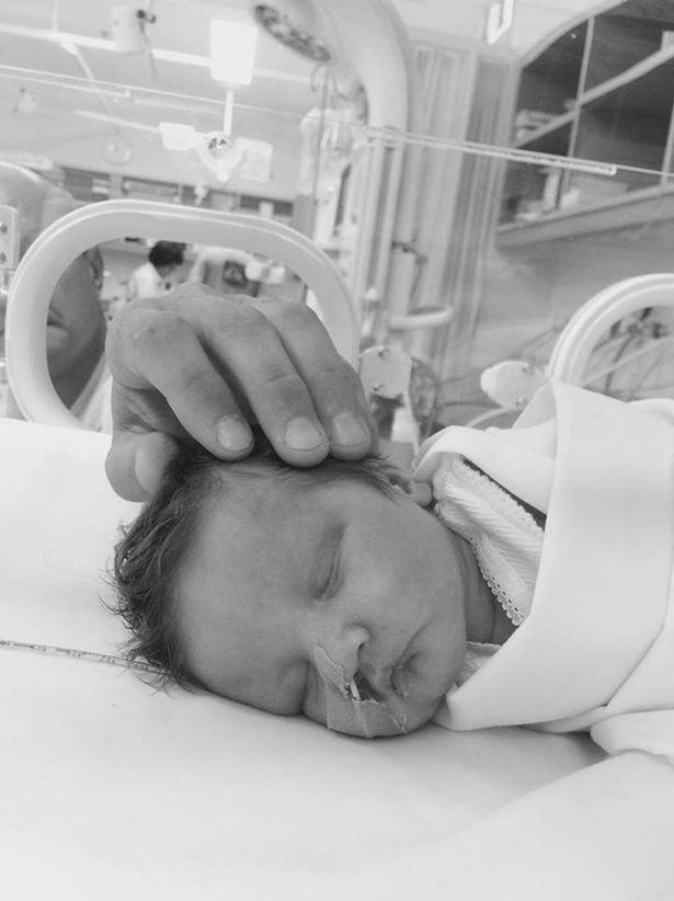 Bebê nasce com condição rara que o impede de chorar  - Imagem 2