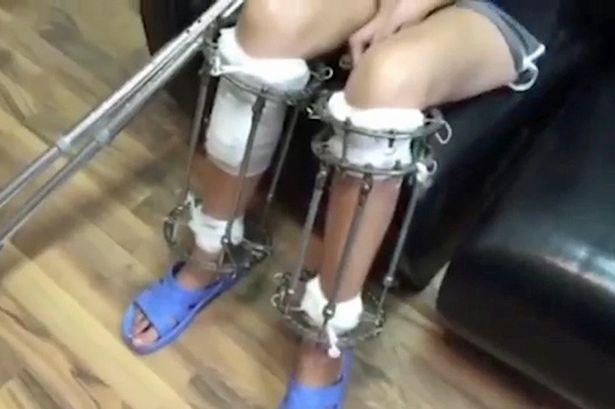 Mulher passa por cirurgia para aumentar as pernas após ser considerada baixa para carreira de modelo - Imagem 2