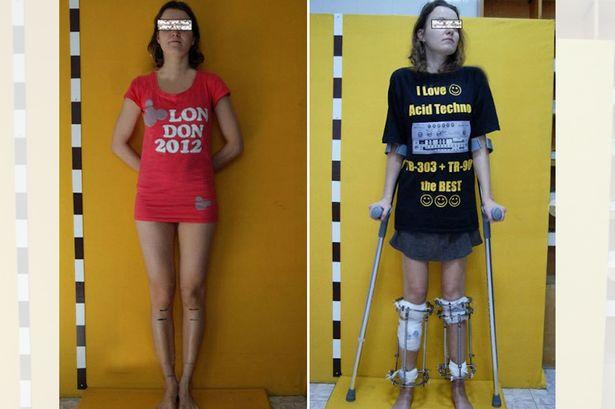 Mulher passa por cirurgia para aumentar as pernas após ser considerada baixa para carreira de modelo