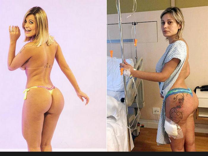 Andressa Urach terá enfermeiros por 60 dias em casa; gastos com saúde já beiram R$ 400 mil - Imagem 3
