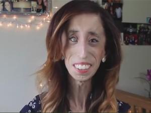 """Mulher chamada de """"mais feia do mundo"""" fala sobre bullying em filme - Imagem 1"""