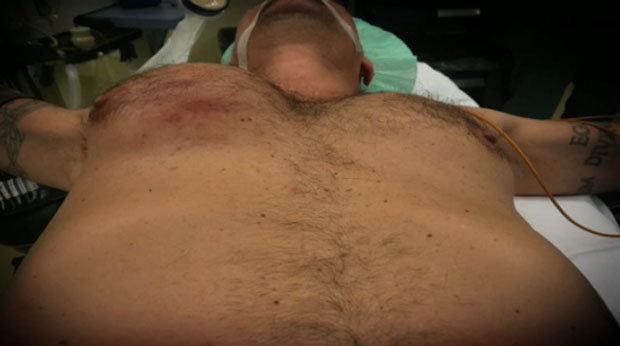 Brett fez a cirurgia para melhorar sua autoestima