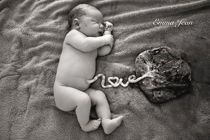 Bebê ligado a placenta (Crédito: Emma Jean)