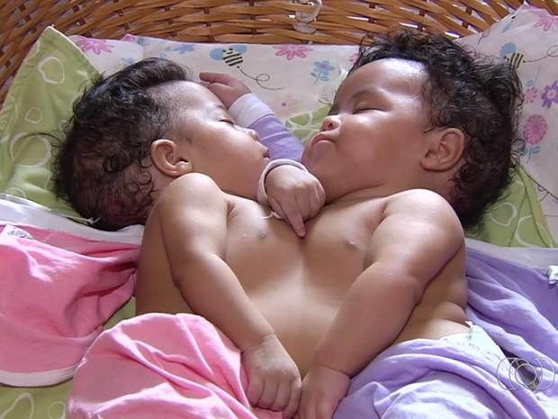Gêmeas siamesas  (Crédito: Reprodução)