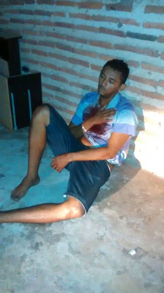 Acusado levou um tiro no peito em troca de tiros (Crédito: Plantão Policial Piauí)