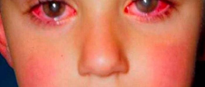 Criança perde 75% da visão (Crédito: Reprodução)