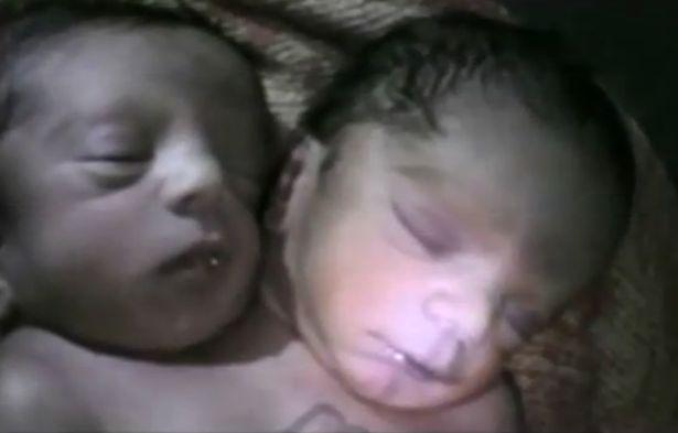 Bebê com duas cabeças (Crédito: Divulgação )