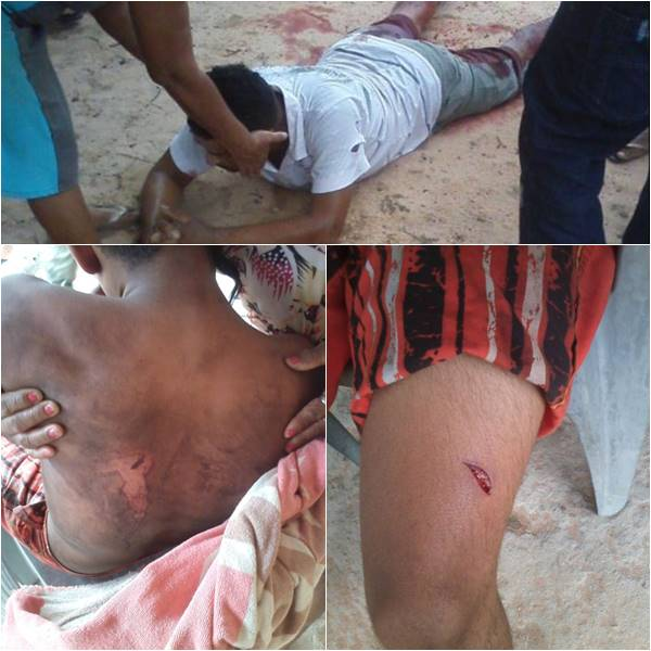 Briga entre familiares deixa feridos (Crédito: Folha de Parnaíba)