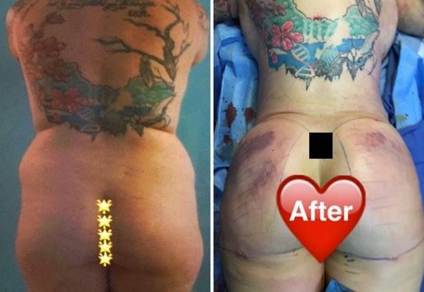 Antes e depois  (Crédito: Reprodução)
