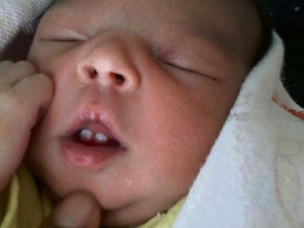 Bebê recém-nascido com dois dentes (Crédito: Reprodução)