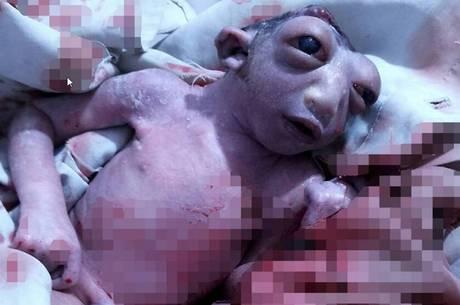 Bebê nasce sem parte da cabeça (Crédito: Reprodução)