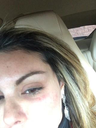 Liziane Gutierrez com olho roxo (Crédito: Divulgação)