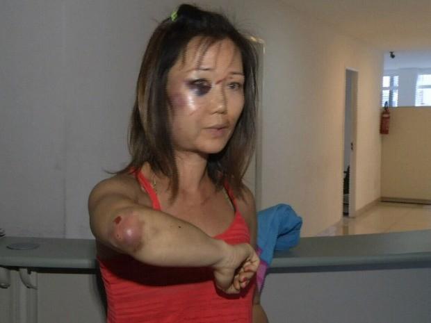 Turista de 39 anos teve ferimentos no rosto e no braço  (Crédito: reprodução)