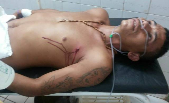 Jovens são levados para o HUT ao serem baleados em José de Freitas