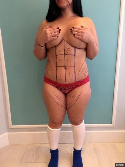 Marlene Chinea antes da cirurgia (Crédito: Reprodução)