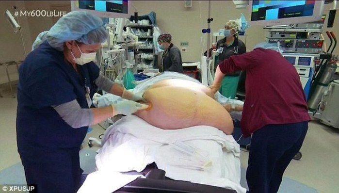Nikki Webster passou por cirurgia de redução de estômago.