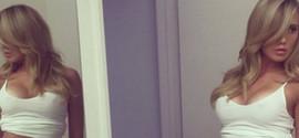Modelo 'Rainha do Snapchat' morre após erro de quiroprata