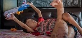 Criança tem uma perna que cresce 4 vezes mais que a outra saudável