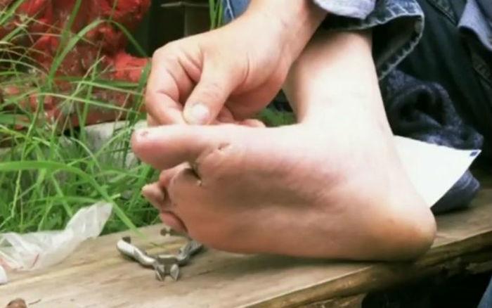 O ex-soldado amputou os próprios dedos dos pés