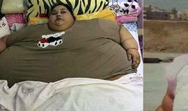 Mulher mais obesa do mundo pesa 502 kg e não sai de casa há 25 anos