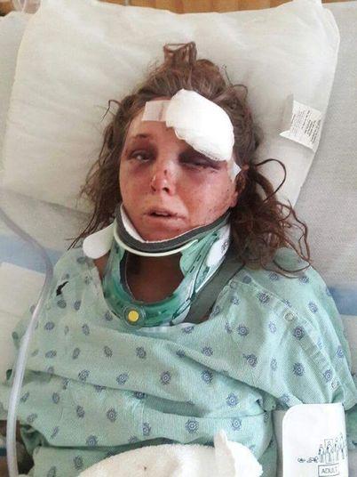 """""""Ele arrrancou a minha língua"""", diz mulher agredida pelo namorado"""