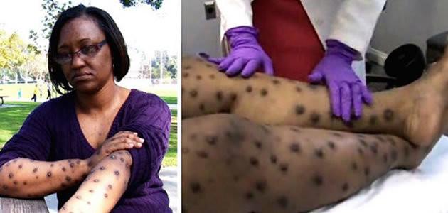 Mulher passa uma década com doença horrível
