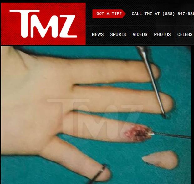 Dedo decepado de Lindsay Lohan