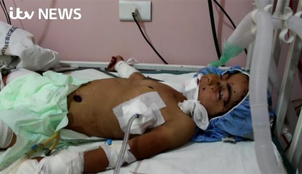 Menina chegou a ser levada para hospital de Aleppo, mas não resistiu (Crédito: Reprodução)