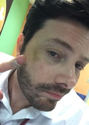 Danilo Gentili se machuca durante filmagem de filma