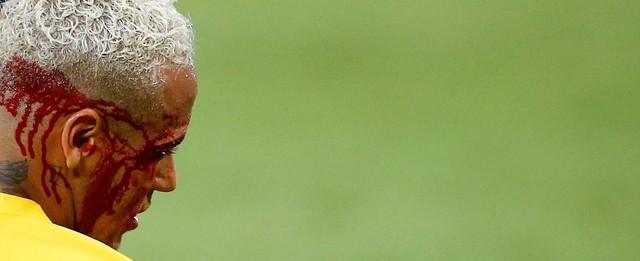 Brasil goleia Bolívia com show de Neymar que sai sangrando do jogo