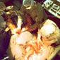 9 coisas que você precisa saber sobre o transplante