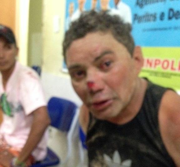 Briga em bar termina com um esfaqueado em Luis Correia