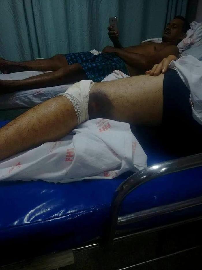 Jovem ficou hospitalizado em Barras (Crédito: Tribuna de Barras)
