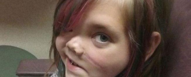 Menina que teve crânio partido ao meio reage após anos em coma