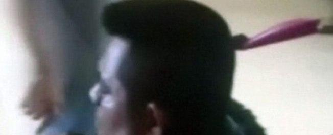 Taxista chega em hospital com uma faca fincada na cabeça no Peru